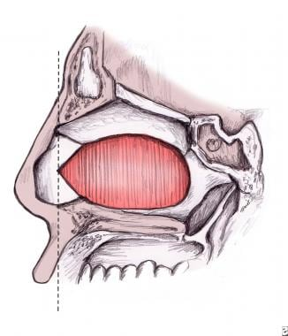 Basic closed technique for rhinoplasty. Most dorsa