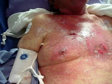 Case A. Cutaneous injury caused by irradiation of