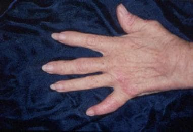 Psoriatic arthritis involving the distal phalangea