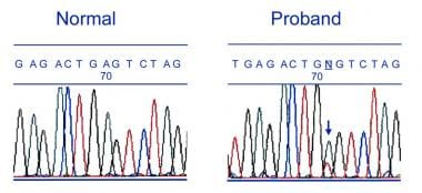Partial DNA sequence of the gene associated with f