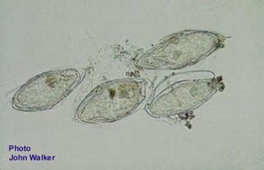 Eggs of Schistosoma haematobium isolated from urin