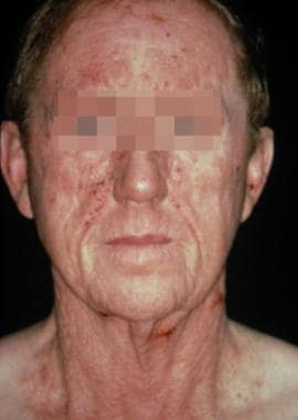 Airborne contact dermatitis in a patient who is al