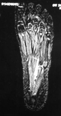 MRI in the same patient as in image above shows al