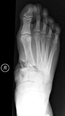 An open midfoot fracture with bone loss at the bas