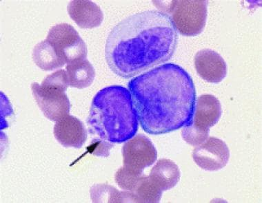 Dysgranulopoiesis demonstrating Chediak-Higashi-li