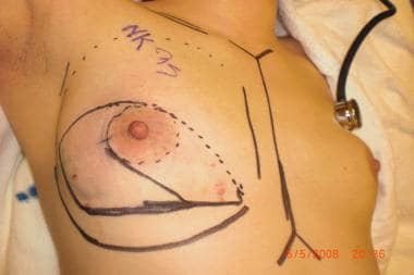 Anatomy markings prior to mastectomy.