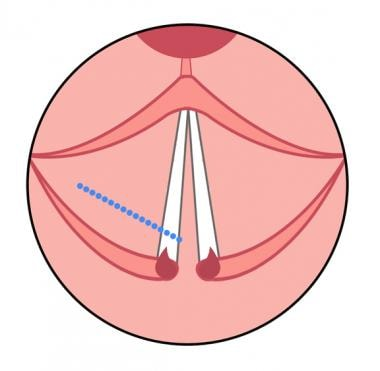 Diagram showing cordotomy incision (blue dotted li