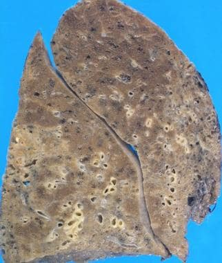 Gross photograph of typical lung findings in usual