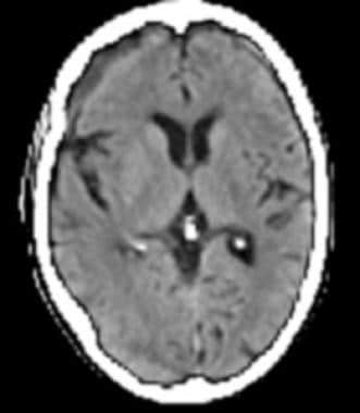 Late subacute subdural hematoma has decreased atte