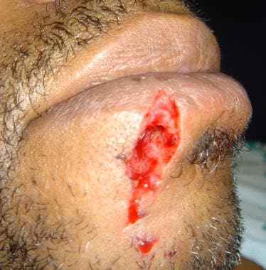 Lip laceration involving the lower vermilion borde