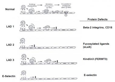 Protein defects.