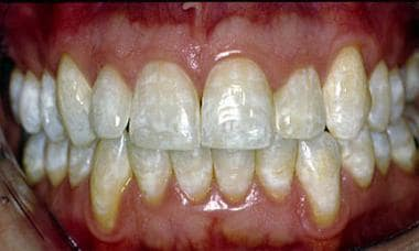 Mild dental fluorosis causing mottled white intrin