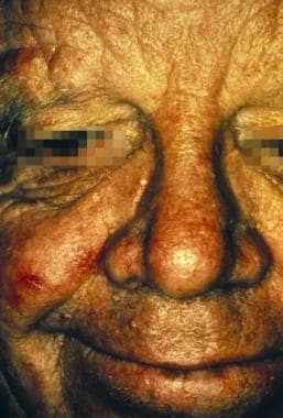 A patient with trichilemmoma papules on the face.