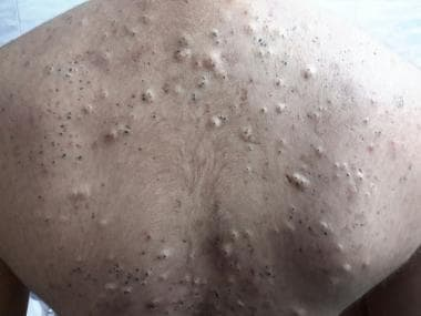 Acneiform lesions in a Behçet disease patient. Cou