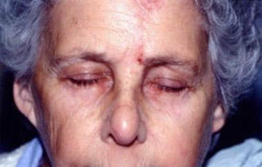 Forehead flap at 3 weeks, at the time of suture re