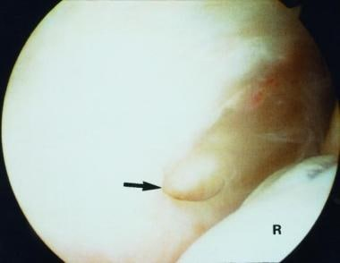 Type 3 lateral epicondylitis showing a large tear