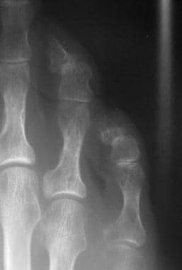 Fifth-toe deformities. This radiograph shows dista