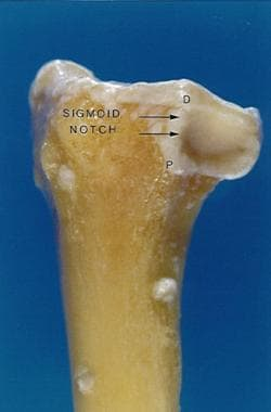 Sigmoid notch of distal radius with distinct dorsa