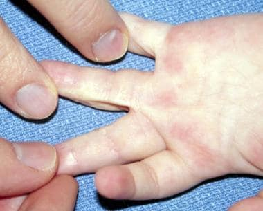 Hand of 26-month-old patient who underwent release