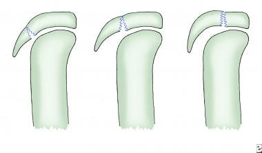Diagrammatic view of tibial tubercle avulsion clas