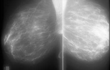 Mammographic appearance of breast hypertrophy with