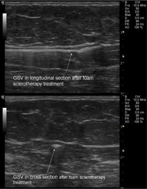 Ultrasonogram of great saphenous vein after foam s