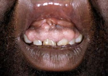 Cyclosporin may induce gingival hyperplasia in app