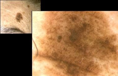Malignant melanoma in situ on face or lentigo mali