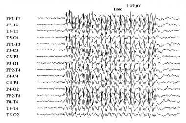 Electroencephalogram demonstrating absence epileps