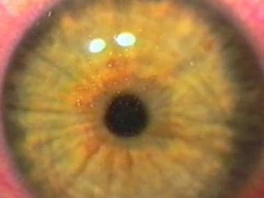 Immediate postoperative image of the eye that show