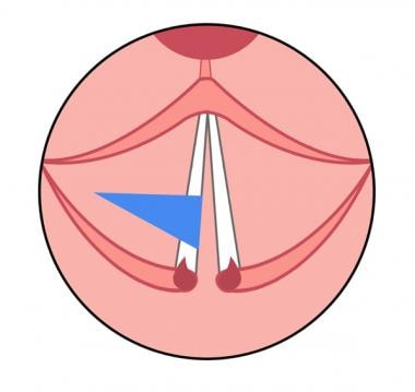 Diagram showing the result of cordotomy incision o