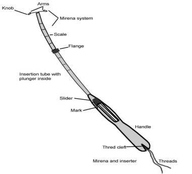 Intrauterine Device Insertion Overview Periprocedural Care Technique
