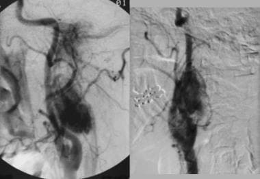Multiple glomus tumors. Angiogram obtained in a fe