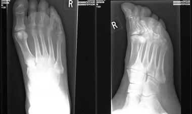 Osteomyelitis, chronic. Radiographs of the foot of