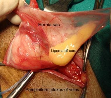 Open inguinal hernia repair. Indirect hernia sac d