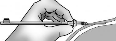 Radial artery cannulation (modified Seldinger). Ra