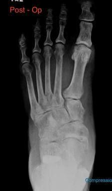 Pes planus (flatfoot). Postoperative anteroposteri