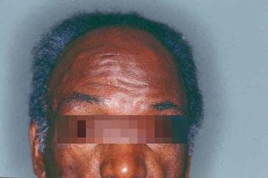 Multiple epidermoid cysts on the forehead of a pat