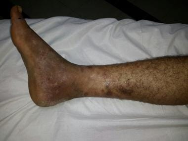 Superficial thrombophlebitis in a Behçet disease p