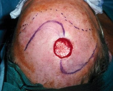 A scalp defect following excision of a leiomyosarc