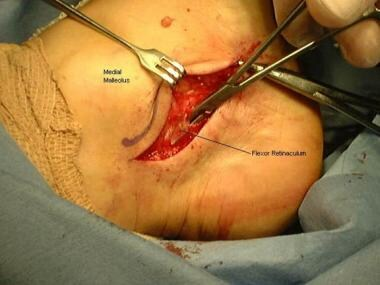 Surgical approach for release of flexor retinaculu