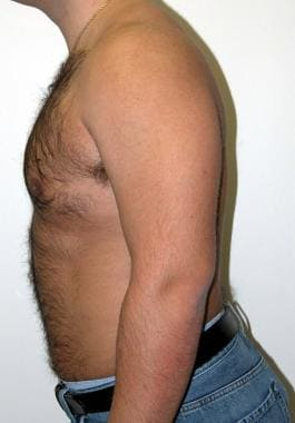 Postsurgical correction of gynecomastia. Note the
