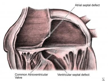 Anatomy of the endocardial cushion defect (ie, com