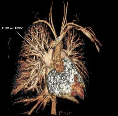 Partial anomalous pulmonary venous connection (PAP
