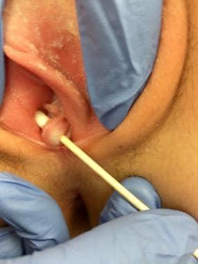 Sex septate hymen Broken septate
