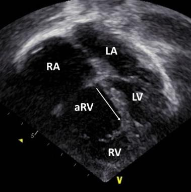 Echocardiogram in an apical four-chamber view. Thi