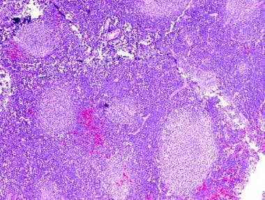 Nodular (desmoplastic) medulloblastoma with pale n