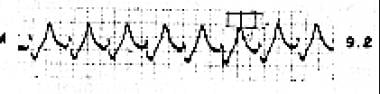 The tracing shows a wide QRS and very large T wave