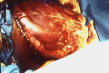 Example of massive edema of bowel and liver in pat