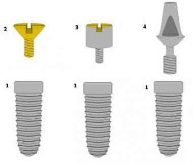 Implant components: (1) implant body, (2) cover sc